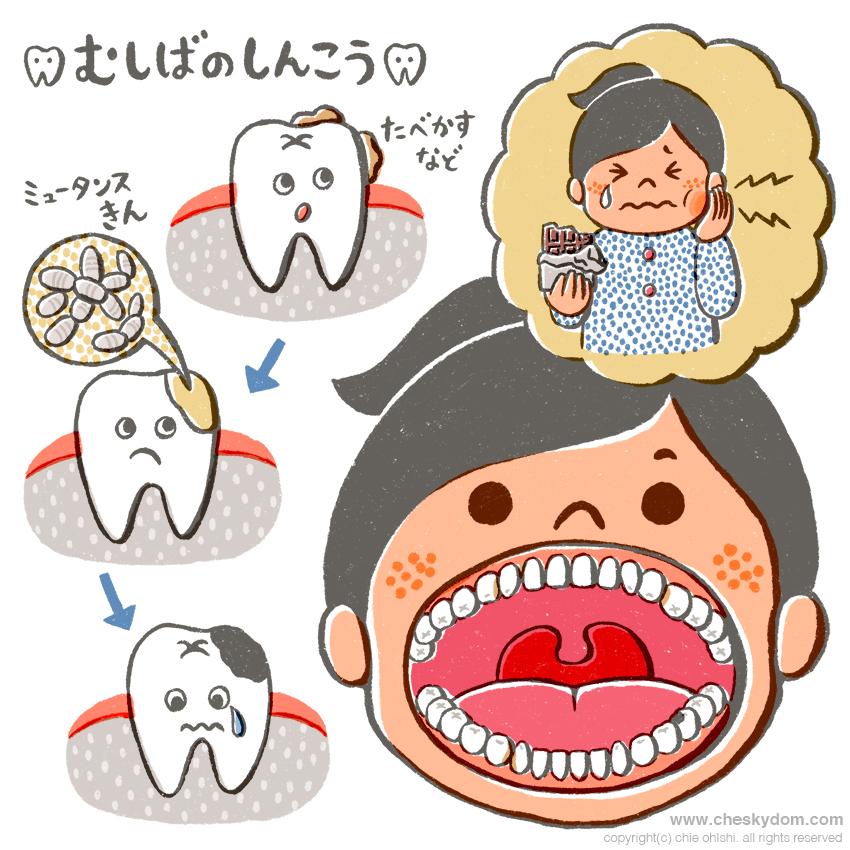 虫歯の進行の説明イラスト